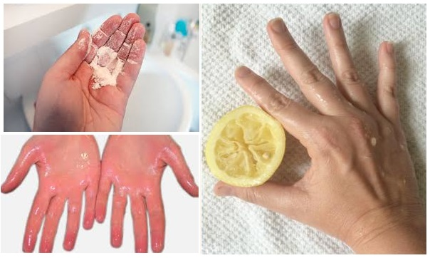transpiration des mains