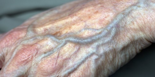 Veines des mains gonfl es voici comment r soudre ce - Comment se couper les veines pour mourir ...