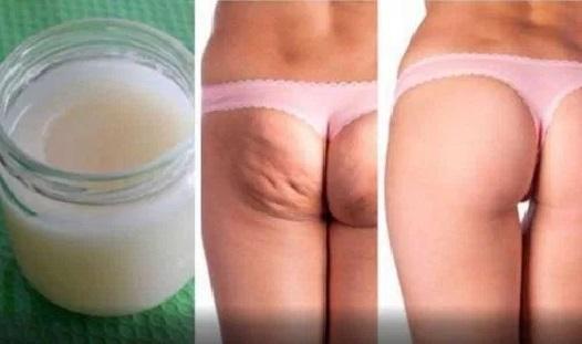 remede-naturel-cellulite
