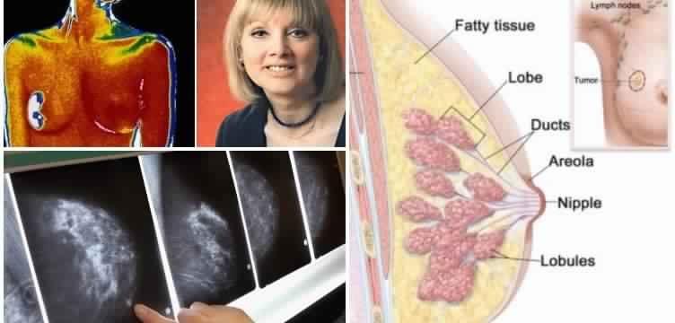 cancer poitrine femme