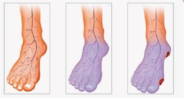 ameliorer circulation sanguine pieds