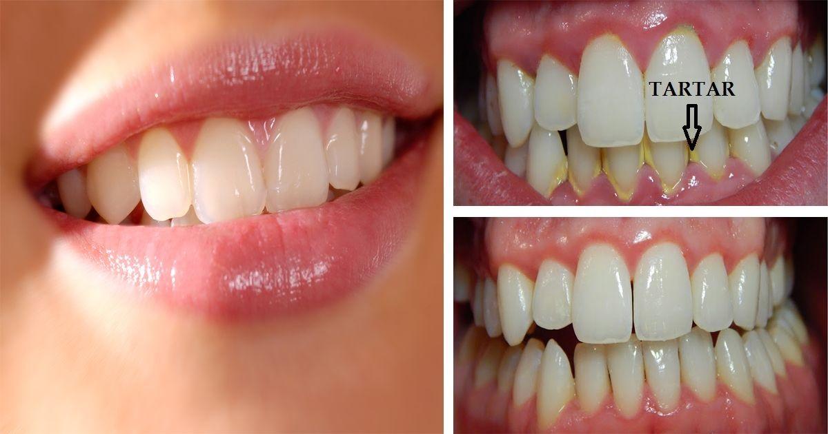Très Soyez vos même des dentistes : voici des trucs pour retirer le  BK56