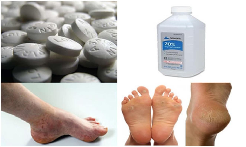 remède naturel pour pieds