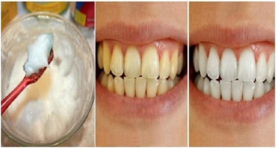 Deux astuces g niales pour des dents extr mement blanches - Comment enlever le tartre ...