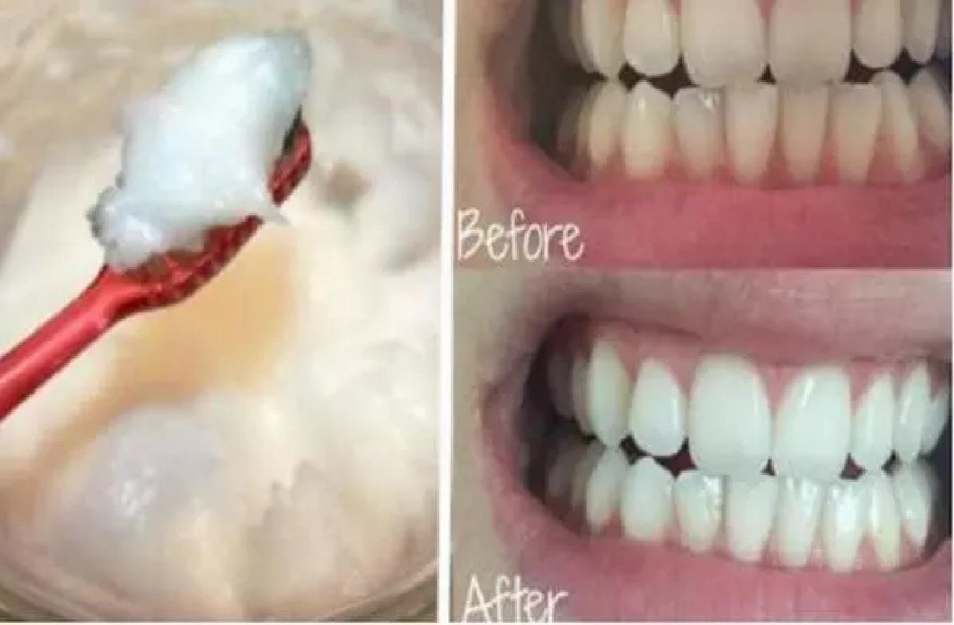 En Essayant Cette Huile Miraculeuse Vous Oublierez Tout Autres Soins Dentaires