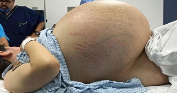 elle parait une femme enceinte de 10 b b s mais quand les m decins ouvrent son ventre toute l