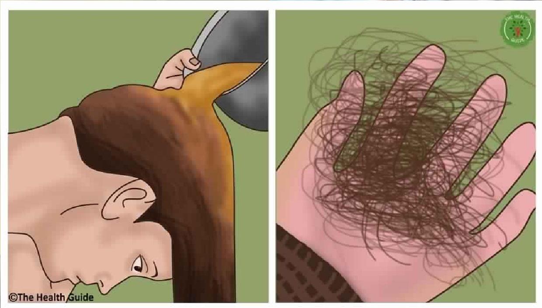 Elle A Ajouté Cela A Son Shampooing Et A Arrêté Les Cheveux Perdants. Voici La Recette !