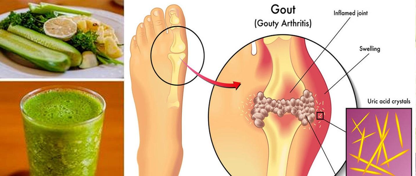 remède anti goutte au pied