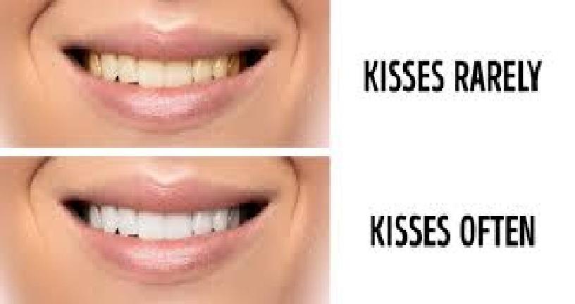 kissdents